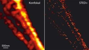Mikroskopauflösung: vorher - nachher
